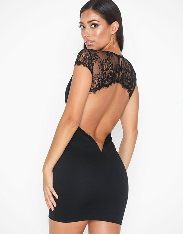 NLY One Lace Open Back Dress